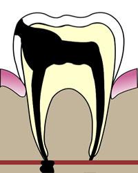 Периодонтит зубов
